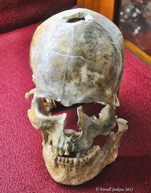 Example of Trepanation, Bronze Age III, Ikiztepe. Samsun Archaeological Museum. Photo by Ferrell Jenkins.